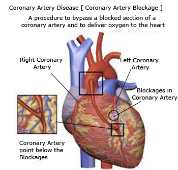 Hrudved : Avoid Coronary Artery Disease, Ejection Fraction