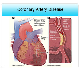 Avoid Coronary Artery Disease, Ejection Fraction